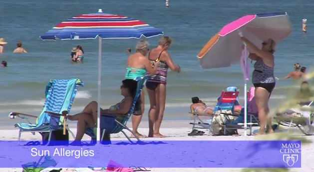 sun allergies and people on the beach