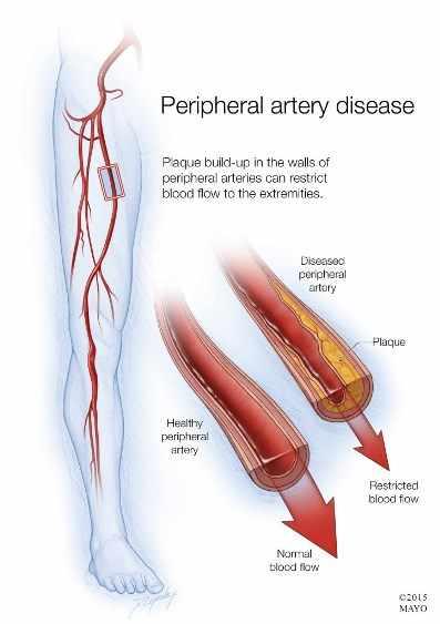 Ilustración de la enfermedad arterial periférica