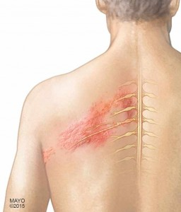 illustration of man with Shingles along his back
