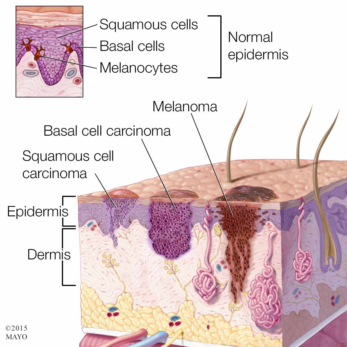 medical illustration of normal epidermis and skin cancer, melanoma