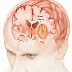 Brain Cancer medical illustration