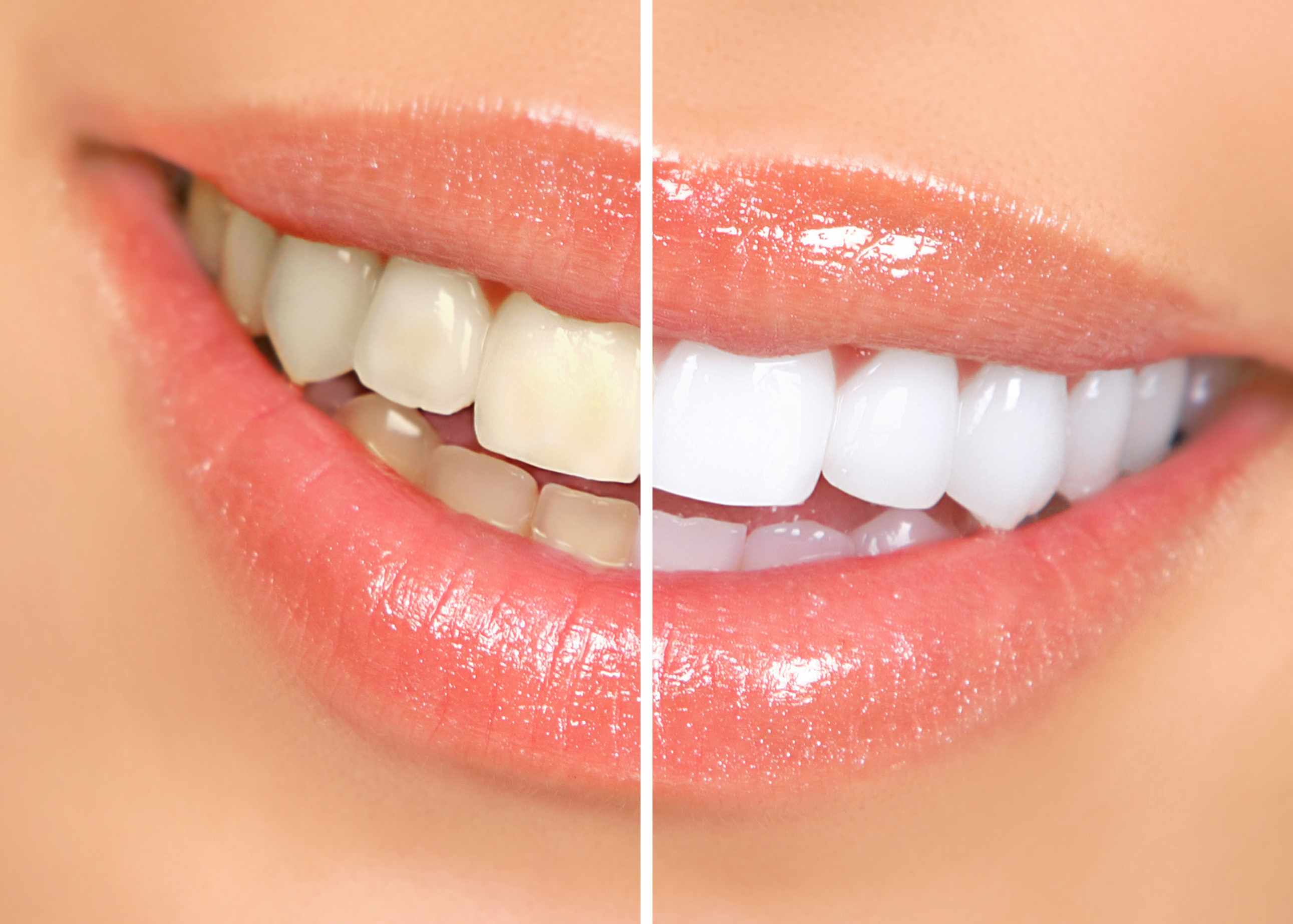 Home Teeth Lightening Products That You Can Use