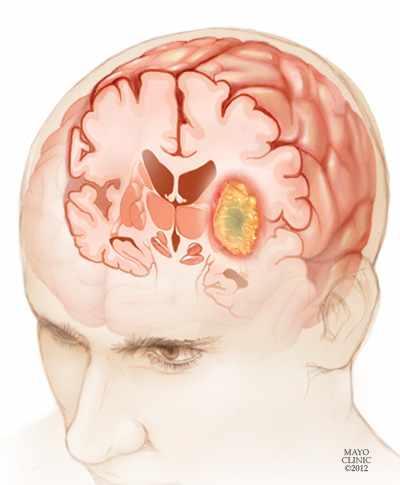 Ilustración de un glioma en un joven