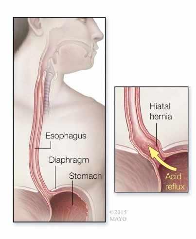 Ilustración médica del esófago, diafragma, estómago y reflujo ácido a la izquierda  y hernia de hiato a la derecha