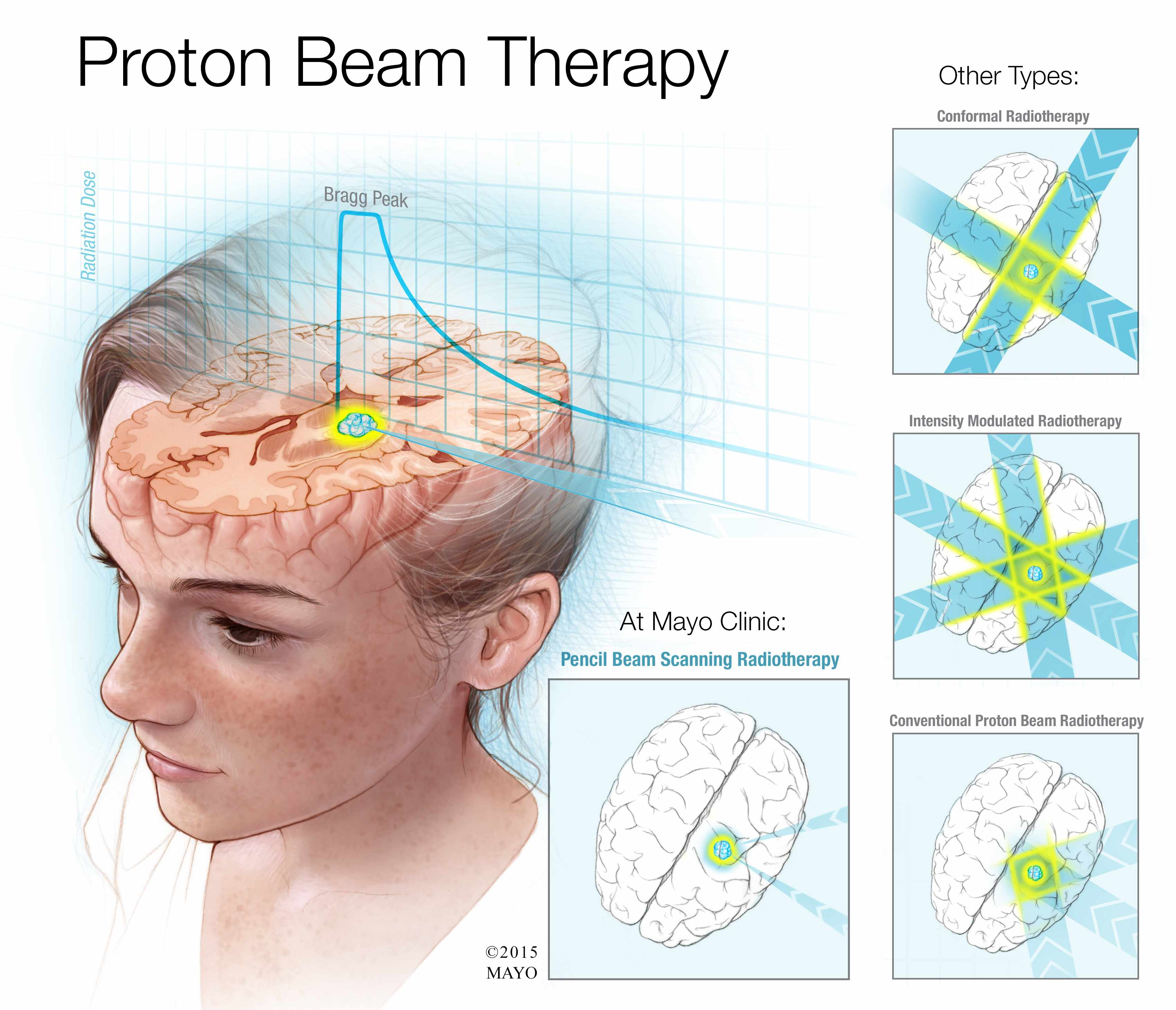 Mayo Clinic Q And A Proton Beam Therapy Causes Fewer Side Effects