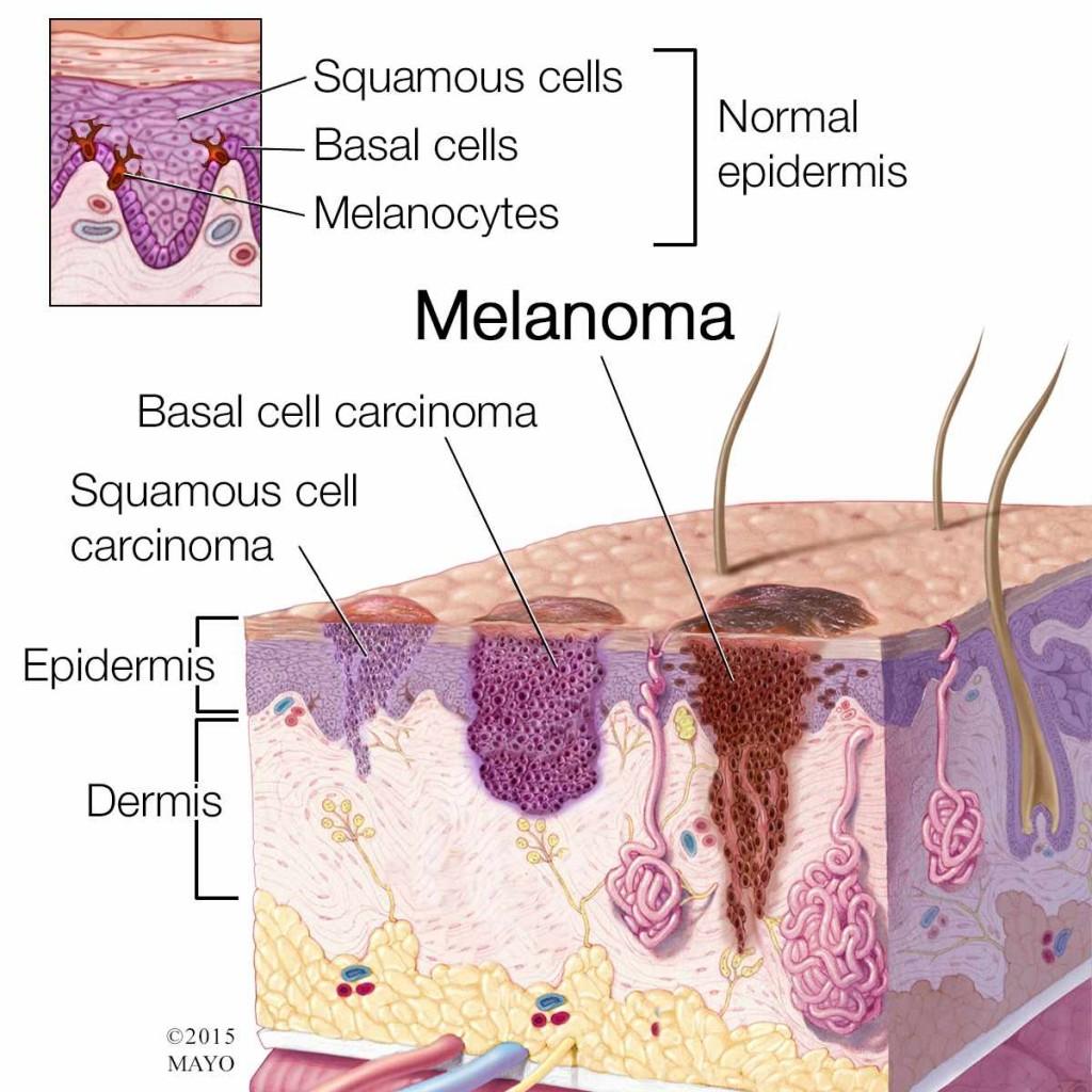 medical illustration of melanoma