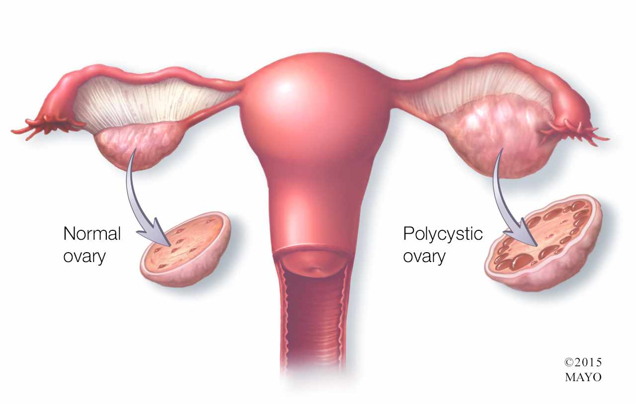 Mayo Clinic Q and A: Effect of PCOS on fertility can vary ...