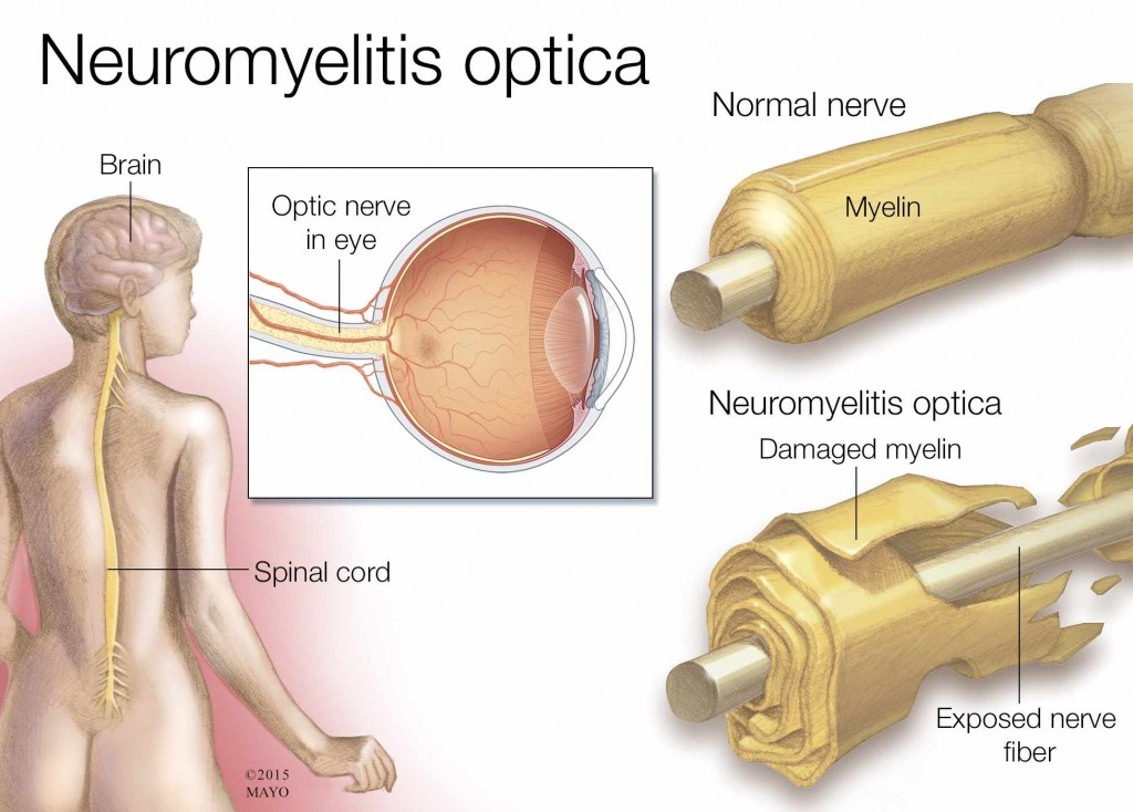 medical illustration of neuromyelitis optica, brain, spinal cord, nerve