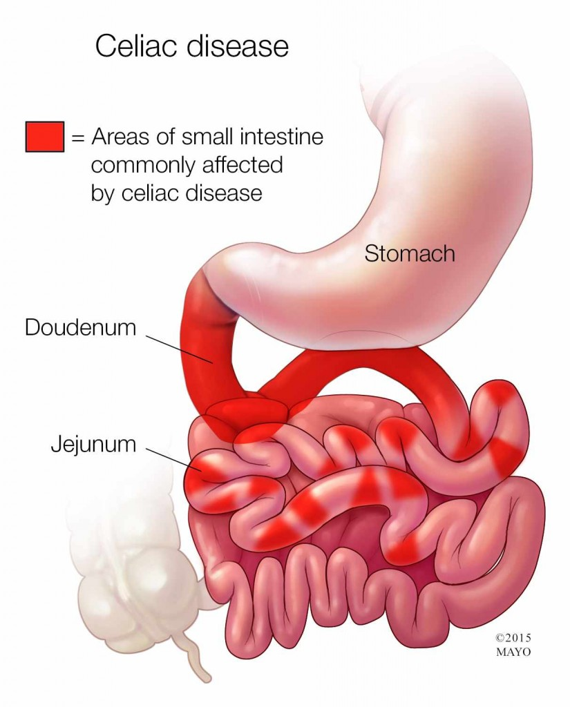 medical illustration of Celiac disease, areas of bowel