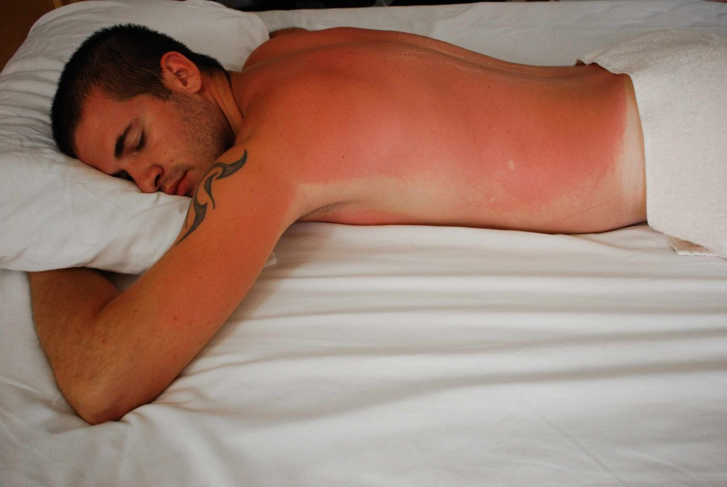man with bright red sunburn on his back, sleeping in bed