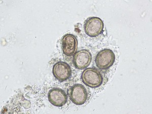 microscopic slide view of parasites