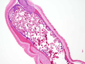 slide of a parasite from Parasite Wonders Blog