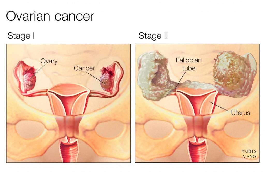 medical illustration of stage I and II ovarian cancer