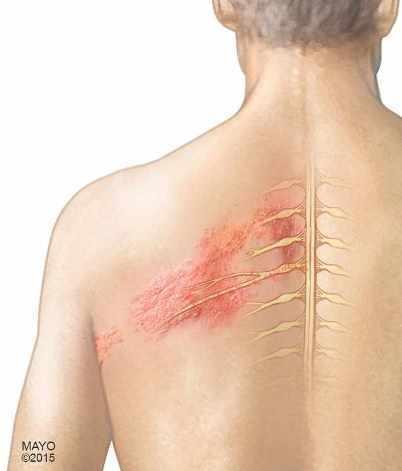 Ilustración de un hombre con herpes zóster en la espalda