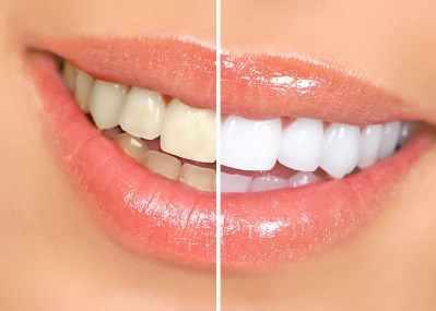Ejemplo de dientes blanqueados, sobre la derecha