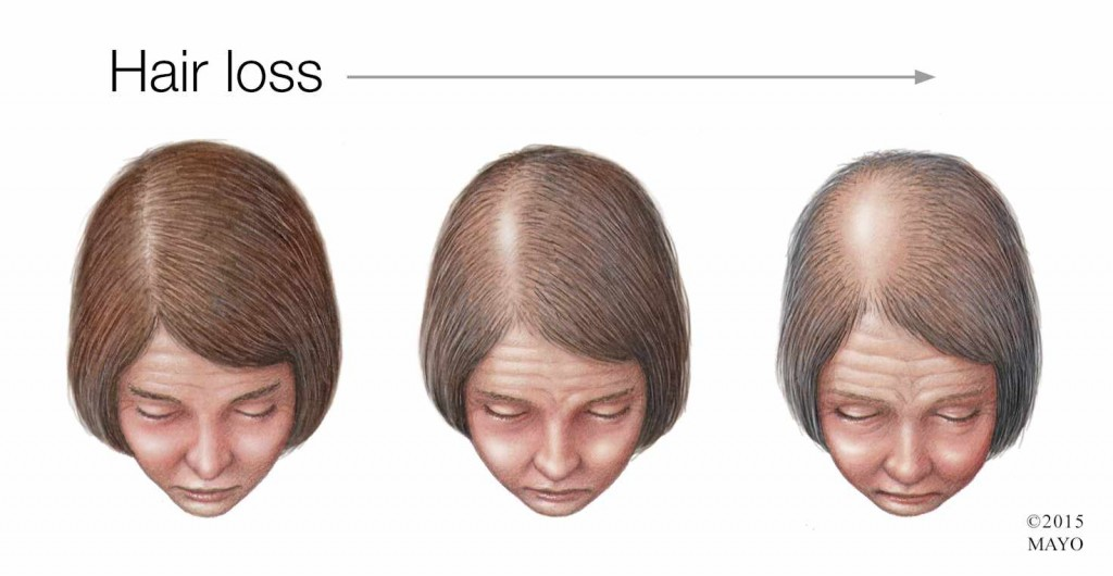 medical illustration of woman with hair loss