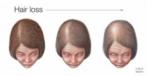 Ilustración médica de una mujer con pérdida del cabello
