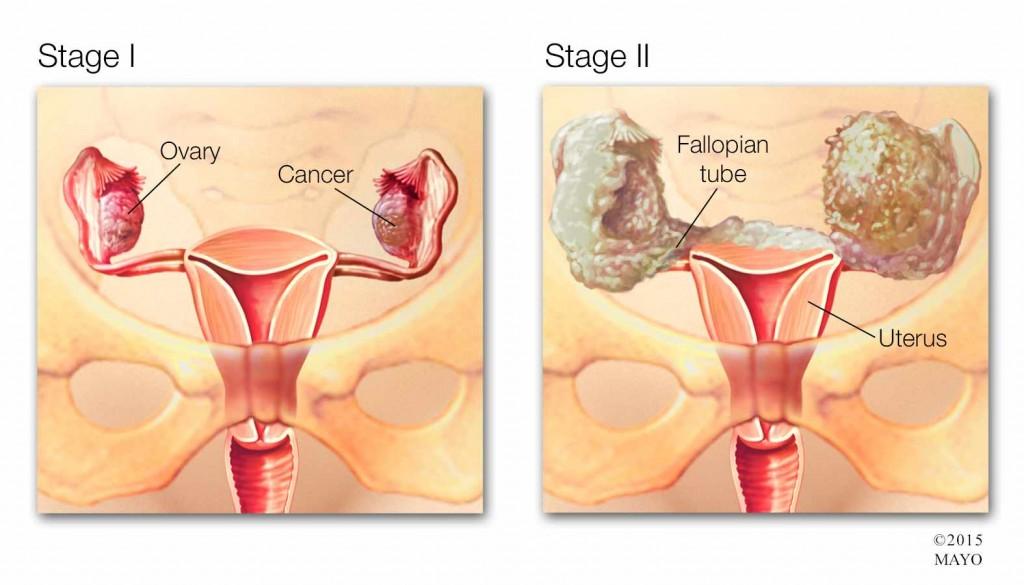 Ilustración médica del cáncer de ovario en etapa 1 y 2
