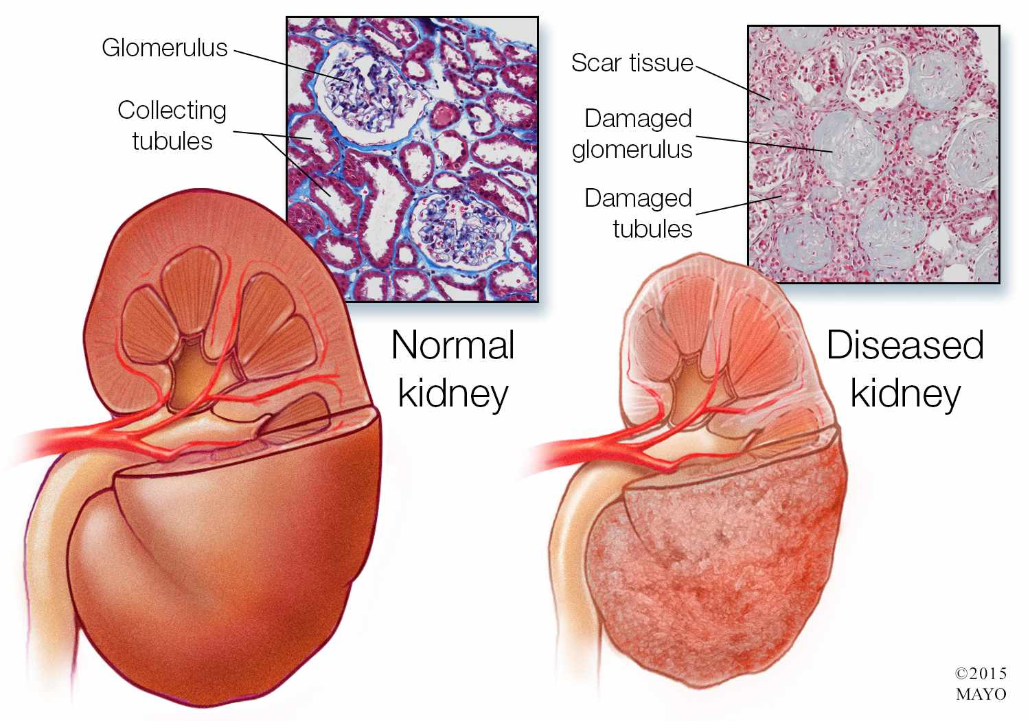 Rare Kidney Disease Prompts New Treatment Options Mayo Clinic News