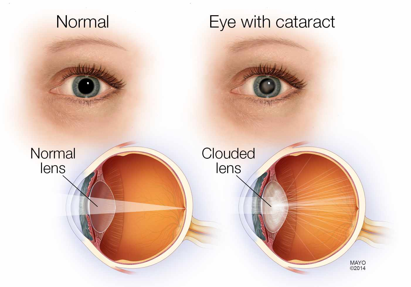 medical illustration of a normal eye and an eye with a cataract, clouded lens