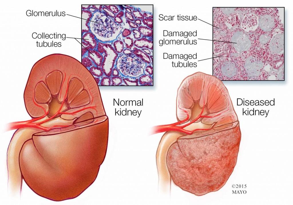 Ilustración médica de un riñón normal (izquierda) y un riñón enfermo (derecha)