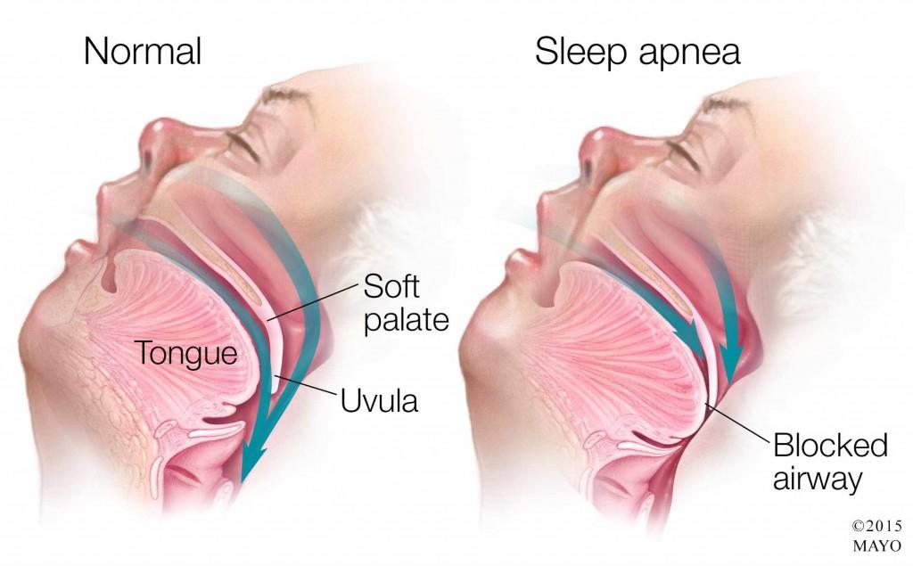 medical illustration of sleep apnea