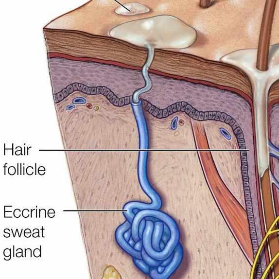 medical illustration of hyperhidrosis, sweat glands