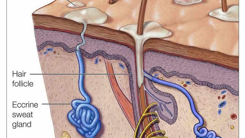 Ilustración médica de los poros sudoríparos, folículo piloso e hiperhidrosis