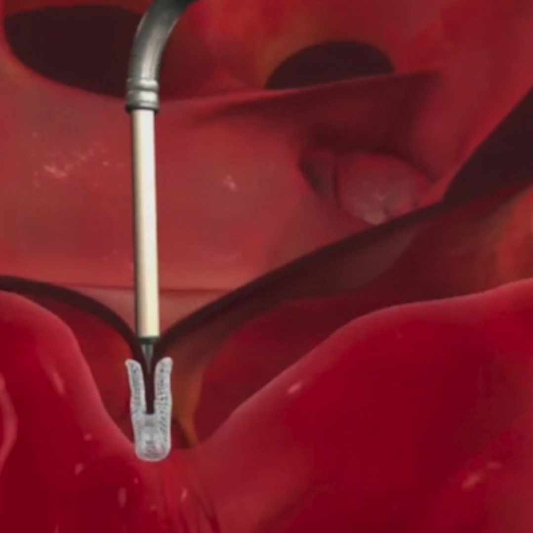 Illustration of the mitral valve clip being placed in the body.