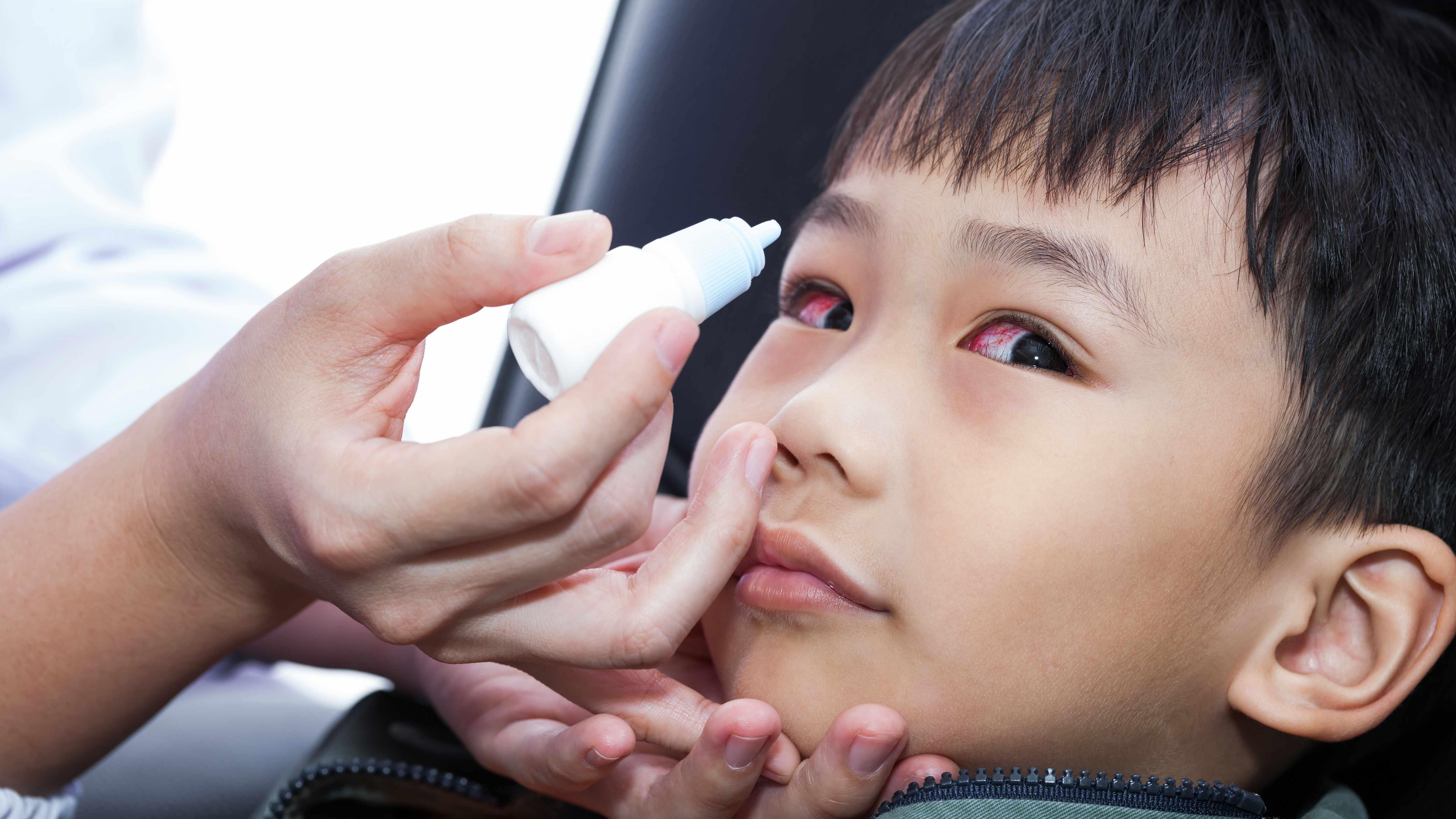 Eye Irritation Abrasion Or Pink Eye When To See An Eye