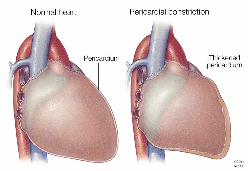 medical illustration of normal heart and heart with pericardial constriction