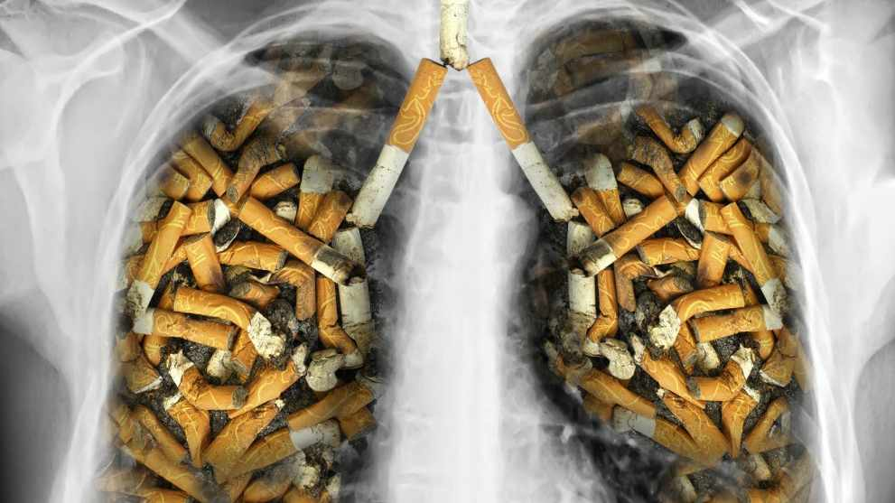 xray of lungs filled with tobacco cigarettes
