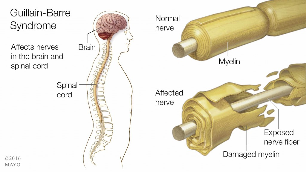 GuillainBarré syndrome GBS is a rapidonset muscle weakness caused by the immune system damaging the peripheral nervous system The initial symptoms are