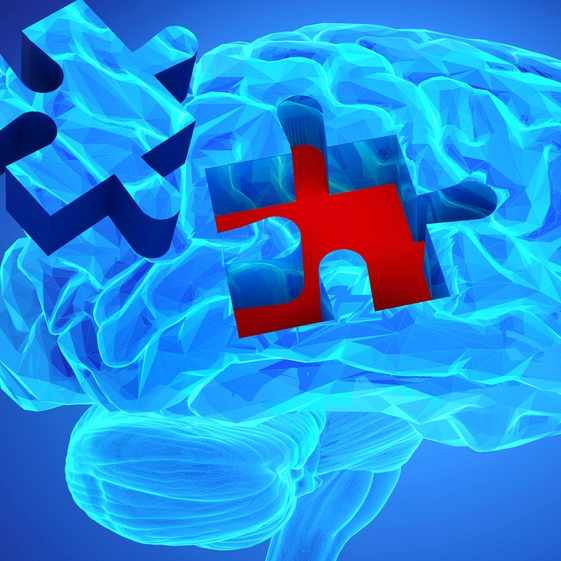 Human brain research and memory loss concept with missing pieces of the puzzle