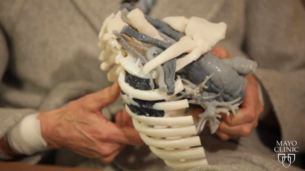 a patient holding a 3D model of rib cage with a tumor