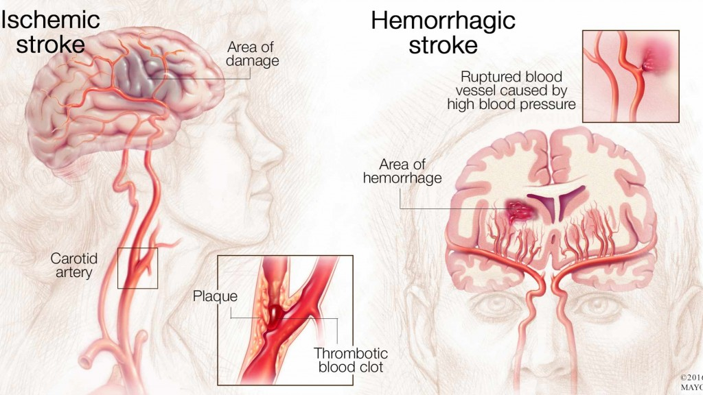medical illustration of brain with ischemic stroke and hemorrhagic stroke