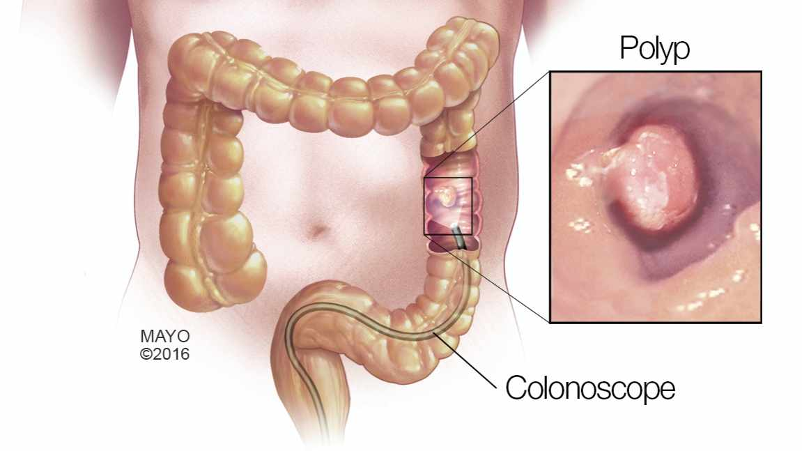 medical illustration of colon, polyp and colonoscope