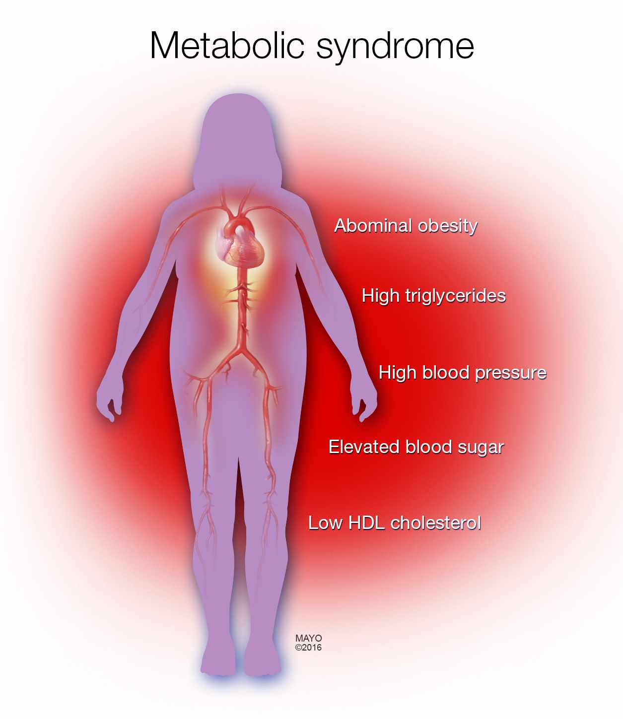 medical illustration of woman's body with metabolic syndrome