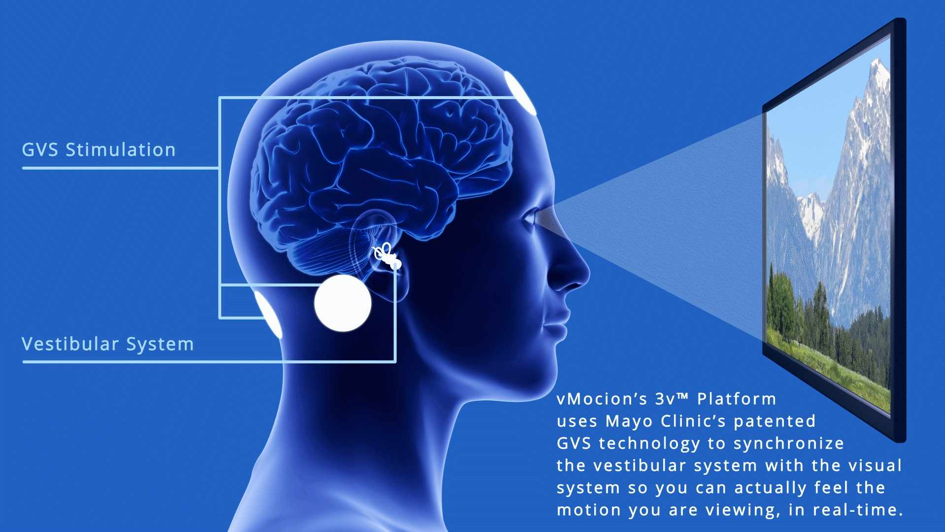Illustration of vMocion 3v Platform attached to human brain