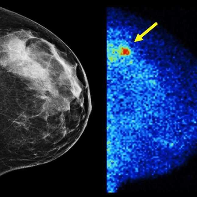 molecular breast image and mammogram side by side