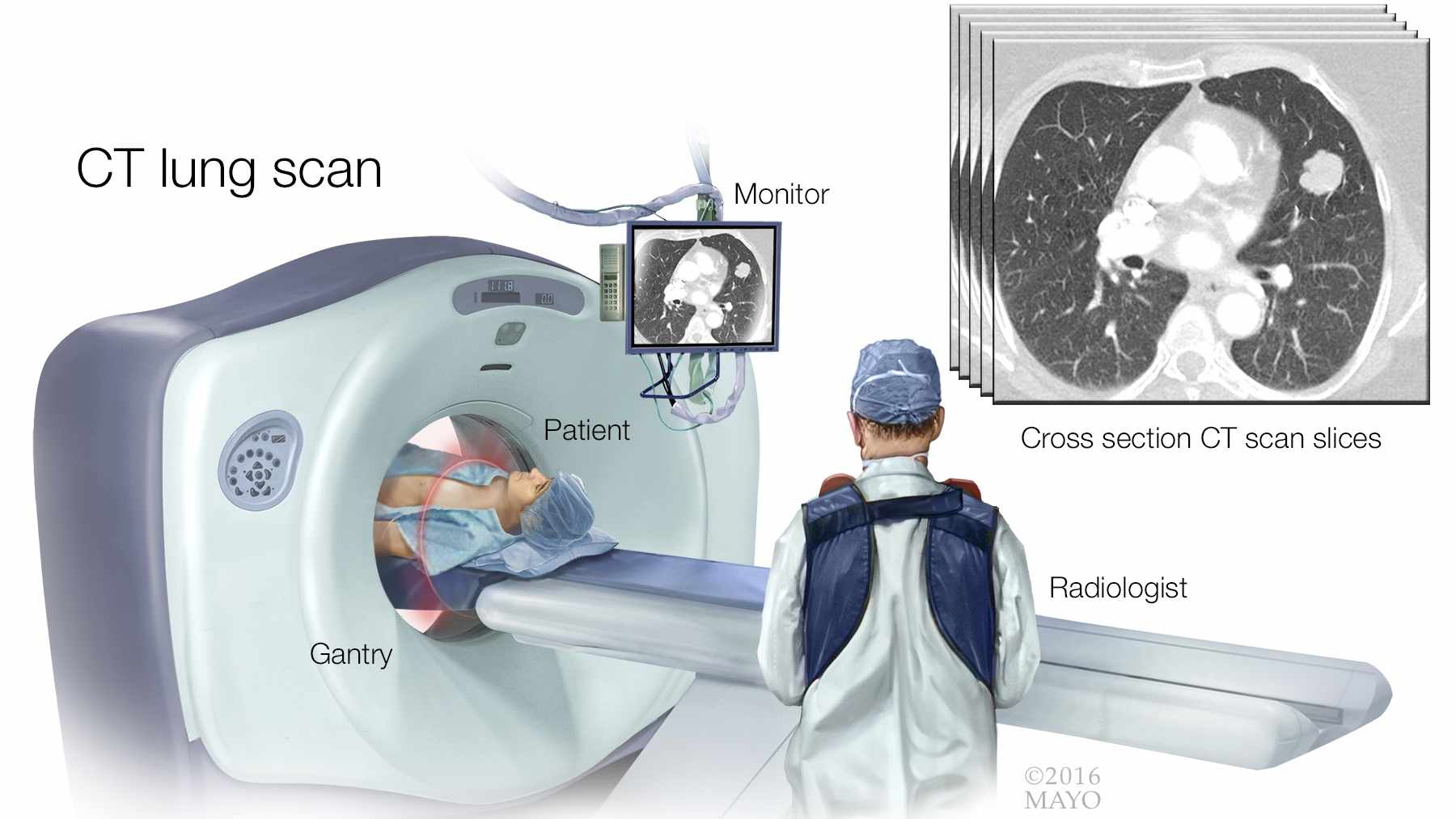 medical illustration of CT lung scan