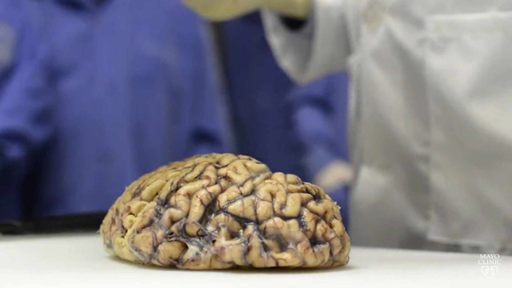 a human brain sitting on a lab table