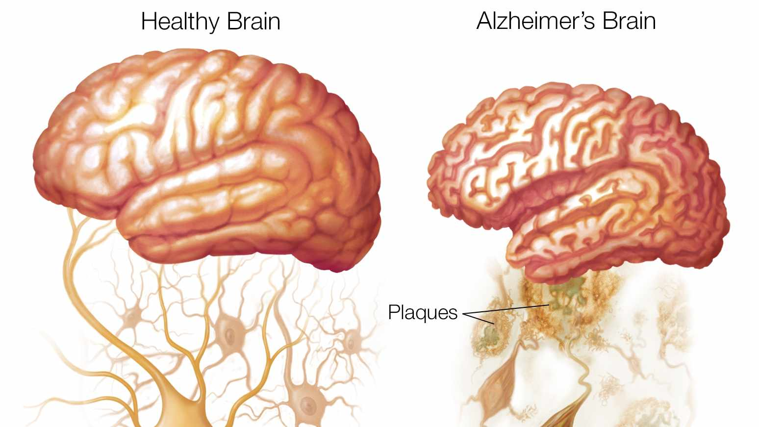 Illustration of a healthy brain and Alzheimer's brain