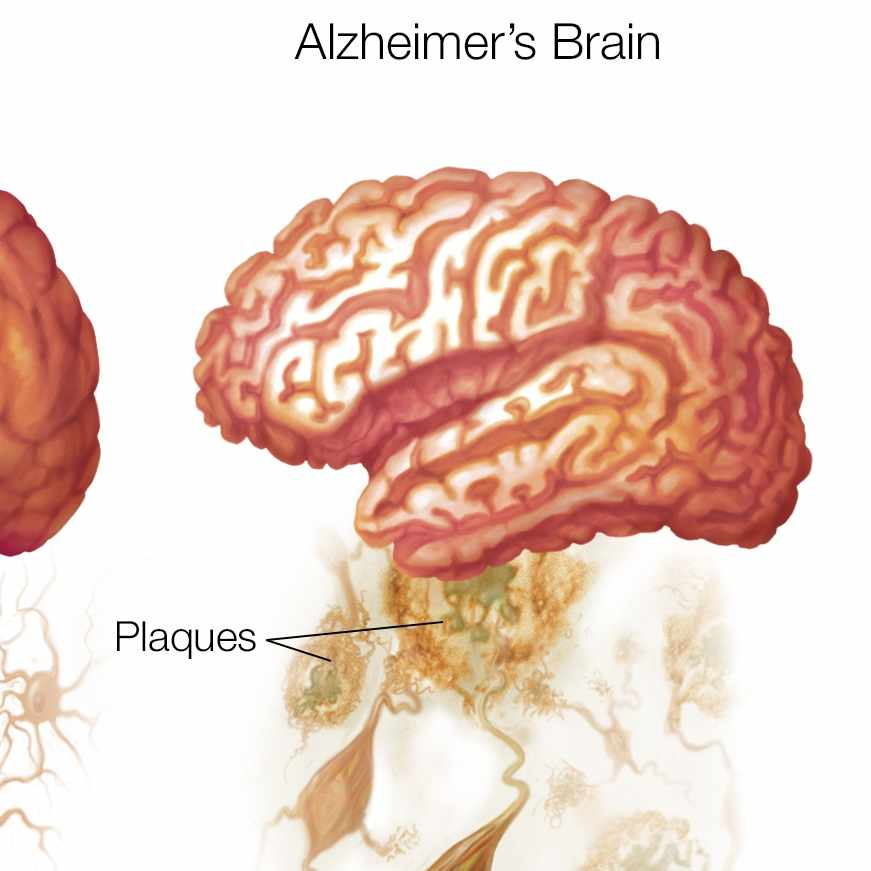 healthy brain and alzheimers brain
