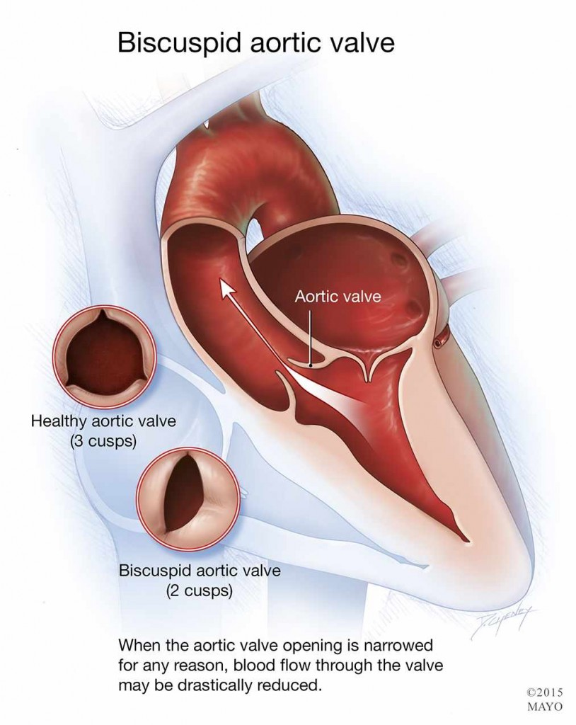 medical illustration of bicuspid aortic valve