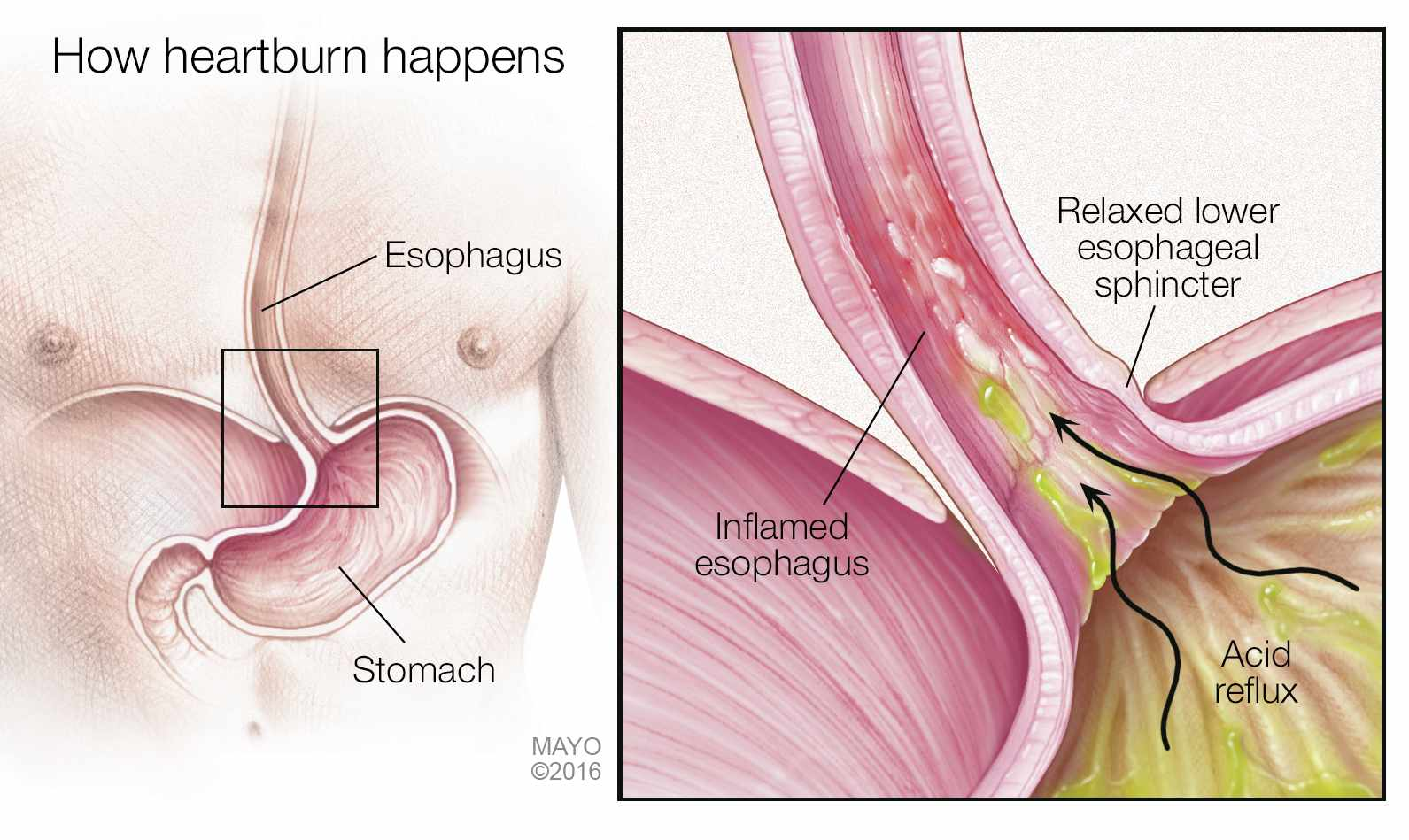 a medical illustration of how heartburn, acid reflux happens
