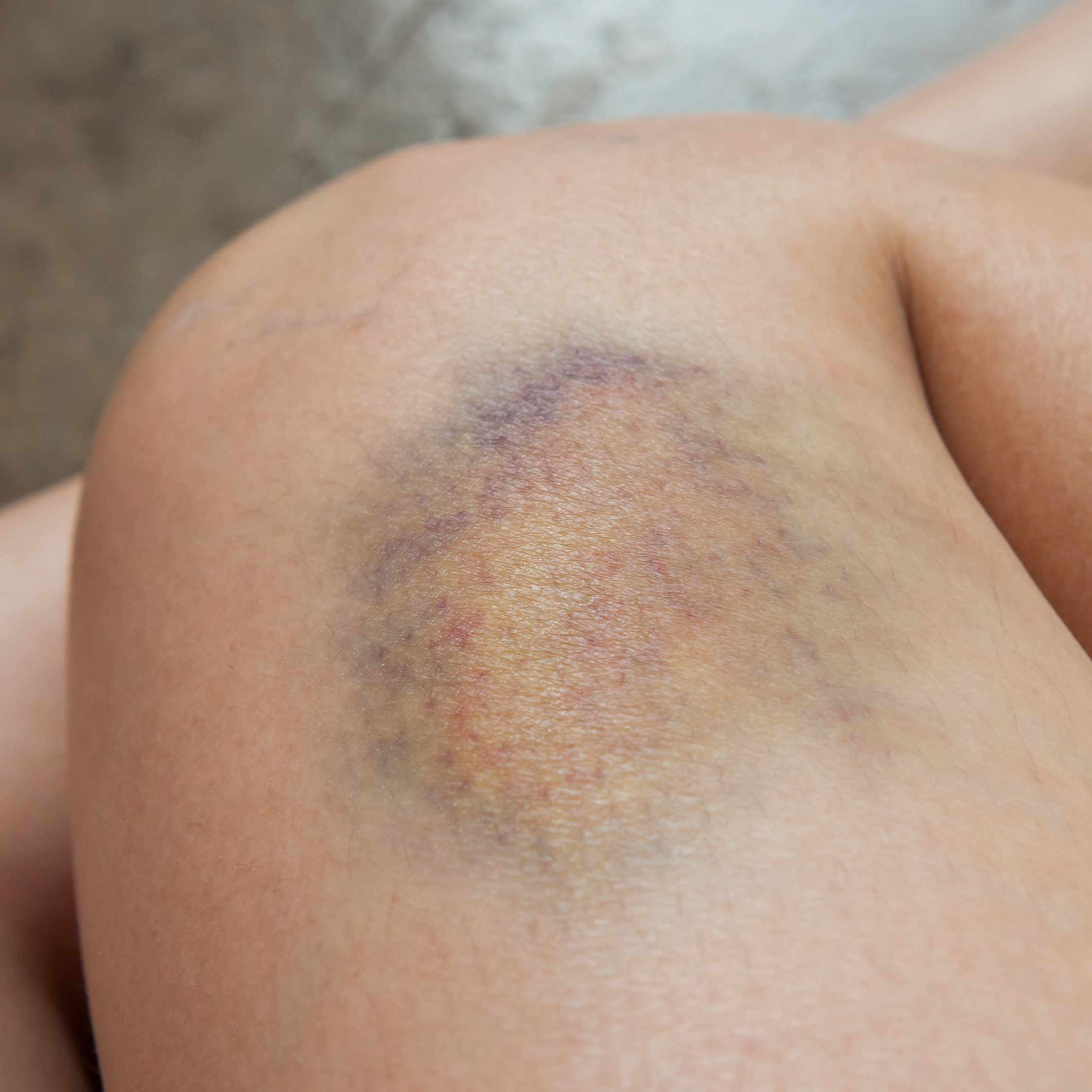 a person's leg with a large yellow, green and purple bruise