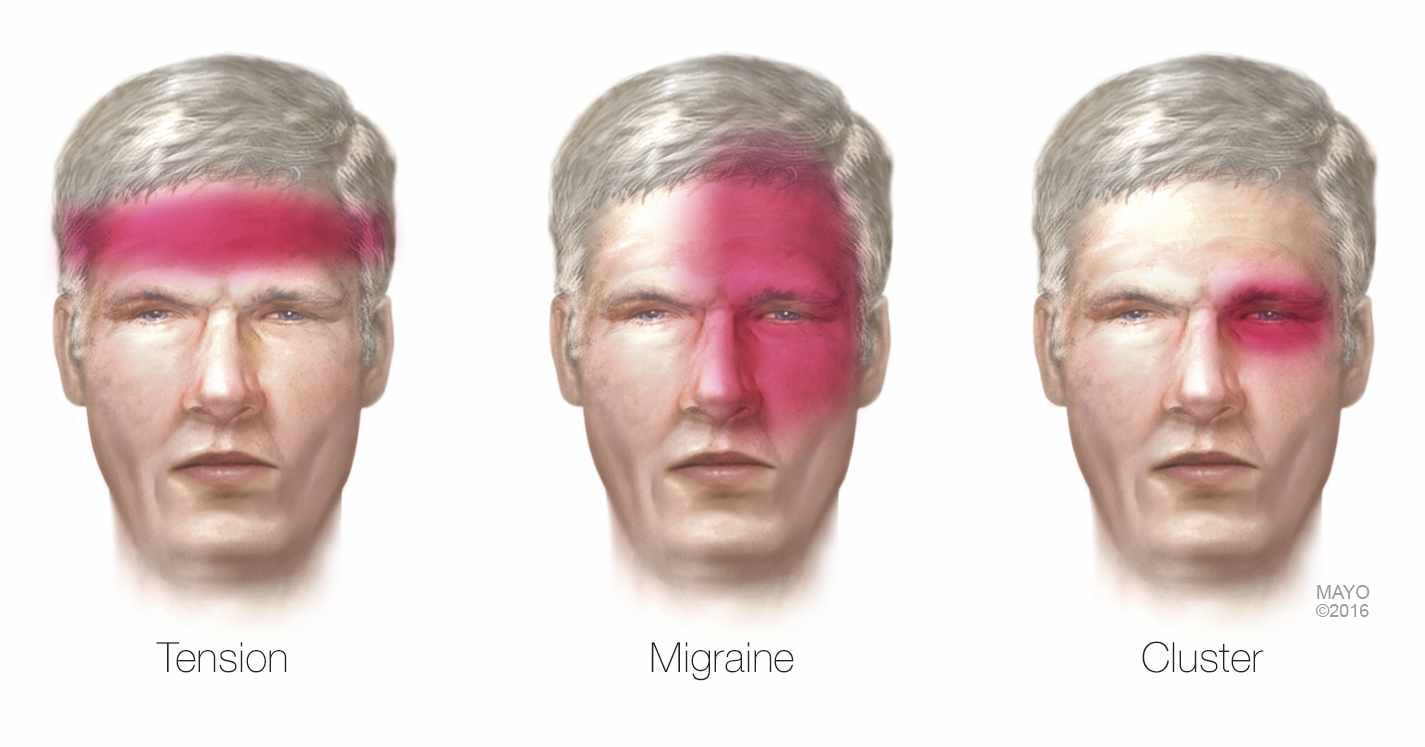 a medical illustration of headaches - tension, migraine, cluster