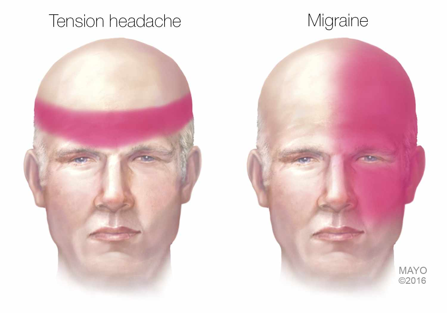 medical illustration of tension and migraine headaches