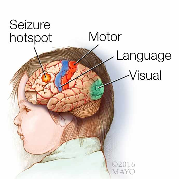medical illustration of a brain with epilepsy; a seizure hotspot; and the motor, language and visual areas